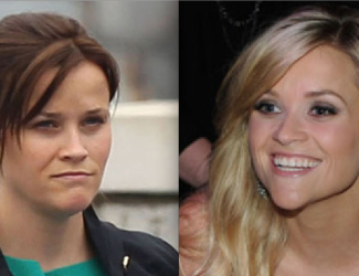 Reese Witherspoon Chin Implant