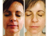 iBeauty Facial Treatments at Solia Spa in Brecksville – Before and After